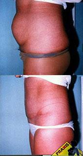 Műtéti képek