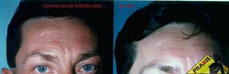 Plasztikai sebészet