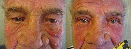 Alsó szemhéjplasztika